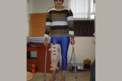 Sonika Kaliraman treated for by Dr. Prateek